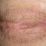 femme au sexe poilue du 30 nue en photo