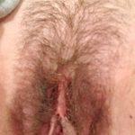 femme au vagin poilu dans le 14 en photo
